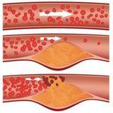 artérioskleróza
