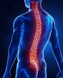 bolesť chrbtice