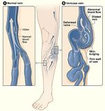 kŕčové žily